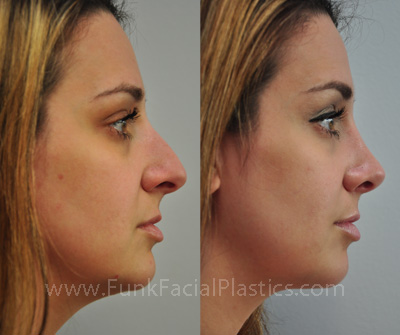 Rhinoplasty houston nose job surgeon funk facial plastic surgery this katy patient underwent septoplasty for a deviated septum rhinoplasty and turbinate reduction notice how her nose is now more refined and feminine solutioingenieria Images