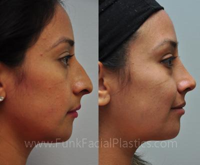 Rhinoplasty Houston - Nose Job Surgeon | Funk Facial Plastic