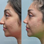 This Houston ethnic rhinoplasty patient had a droopy tip, wide nostrils that were flared, and a dorsal hump.  Otoplasty or ear pinning was also performed.