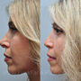 This Texas revision rhinoplasty patient had a twisted knuckled and crooked tip that looked operated.  Revision rhinoplasty softened her nose.