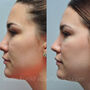 This Texas patient desired rhinoplasty for a crooked nose with a bulbous tip and overall wide nose.  Her nose is now more elegant and refined.