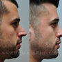 This male Houston rhinoplasty patient not only desired a smaller, straighter nose, but also had a severely deviated nasal septum and required septoplasty to assist with breathing through his nose.