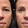 This Houston patient desired blepharoplasty for her lower eyelids and upper eyelids.  Notice how more rested and refreshed yet natural appearing her eyes appear.