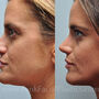 This Houston rhinoplasty patient had a bulbous tip and a droopy tip.  Rhinoplasty created a softer more feminine and refined nose.
