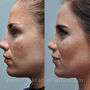 This Houston rhinoplasty patient had a crooked nose.  Rhinoplasty helped bring out her eyes and other facial features.