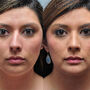 This Houston rhinoplasty patient had a crooked nose with a nasal hump.  A chin implant was also performed.