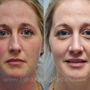 Rhinoplasty for this Houston patient corrected a crooked nose and small hump.  Her breathing problems were resolved after rhinoplasty by correcting a deviated septum with septoplasty.