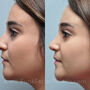 This Katy, Texas rhinoplasty patient desired a more refined tip, narrower nostrils, and softer profile.  Ethnic rhinoplasty with nostril narrowing improved her appearance.