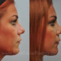 This Houston patient had a bulbous tip and a crooked nose.  Notice how rhinoplasty refined the tip and straightened the nose.