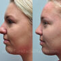 This Houston rhinoplasty patient had a bulbous tip and too large of a nose.  Now her nasal tip is more refined and she has a smaller more feminine nose.