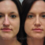 This Houston patient underwent sinus surgery and septoplasty for a deviated septum.  She also had rhinoplasty to correct her crooked nose and wide bulbous tip.