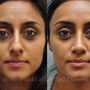 Rhinoplasty was performed on this Houston patient for a bulbous tip and nasal hump.