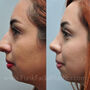 This Houston rhinoplasty patient had a bulbous tip and large hump.  Nose job surgery or rhinoplasty created a more contoured and feminine nose.