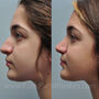 This Katy rhinoplasty patient desired rhinoplasty as a teenager for her wide nose and hump.  Her nose now fits her face, has better lines, and is softer.