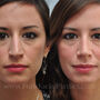 Rhinoplasty corrected this Houston patient's crooked nose.