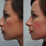 Rhinoplasty on this Houston patient refined her nose and created a more feminine result.