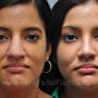This Houston patient had a wide nose and poorly defined nasal tip.  Rhinoplasty improved her appearance and softened her profile.