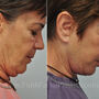 This Houston patient underwent a facelift, neck lift, and upper blepharoplasty.  Notice her natural, yet more refreshed and youthful appearance.