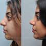 This Houston bulbous tip rhinoplasty patient had a wide and crooked nose.  Rhinoplasty refined her bulbous tip and created a softer nose.