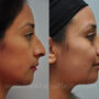 Rhinoplasty with sinus surgery and septoplasty for this Houston patient to improve nasal breathing and refine the nose.