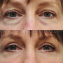 Upper and lower blepharoplasty for this Sugarland patient created  more youthful, refreshed appearing eyelids and she looks more rested.