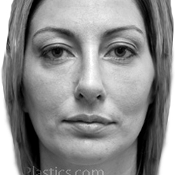 View Facial Fillers Gallery