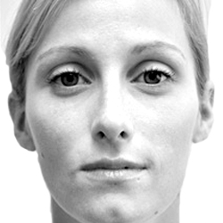 View Rhinoplasty Gallery