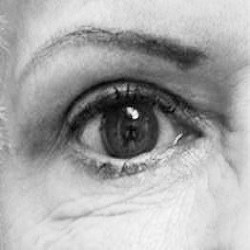 View Upper Eyelid Surgery Gallery
