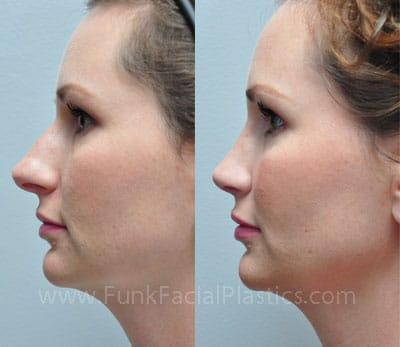Rhinoplasty Houston - Nose Job Surgeon | Funk Facial Plastic Surgery