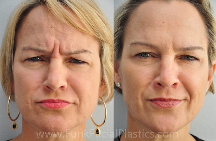 Botox Houston - Dysport Injections - Wrinkle Treatment