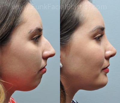 how to look good with a crooked nose