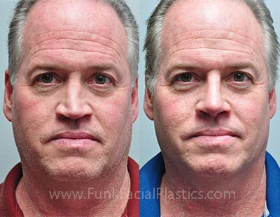 Male Rhinoplasty - Nose Jobs for Men   Funk Facial Plastic