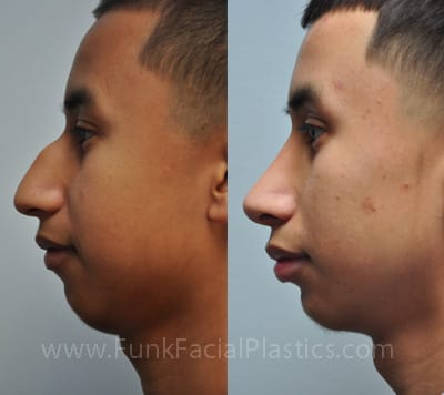 Reminder that getting a nose job is retarded