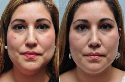 Houston Neck Liposuction - Double Chin Liposuction | Funk