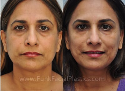 Facial Fillers Houston: Sculptra, Restylane, Perlane