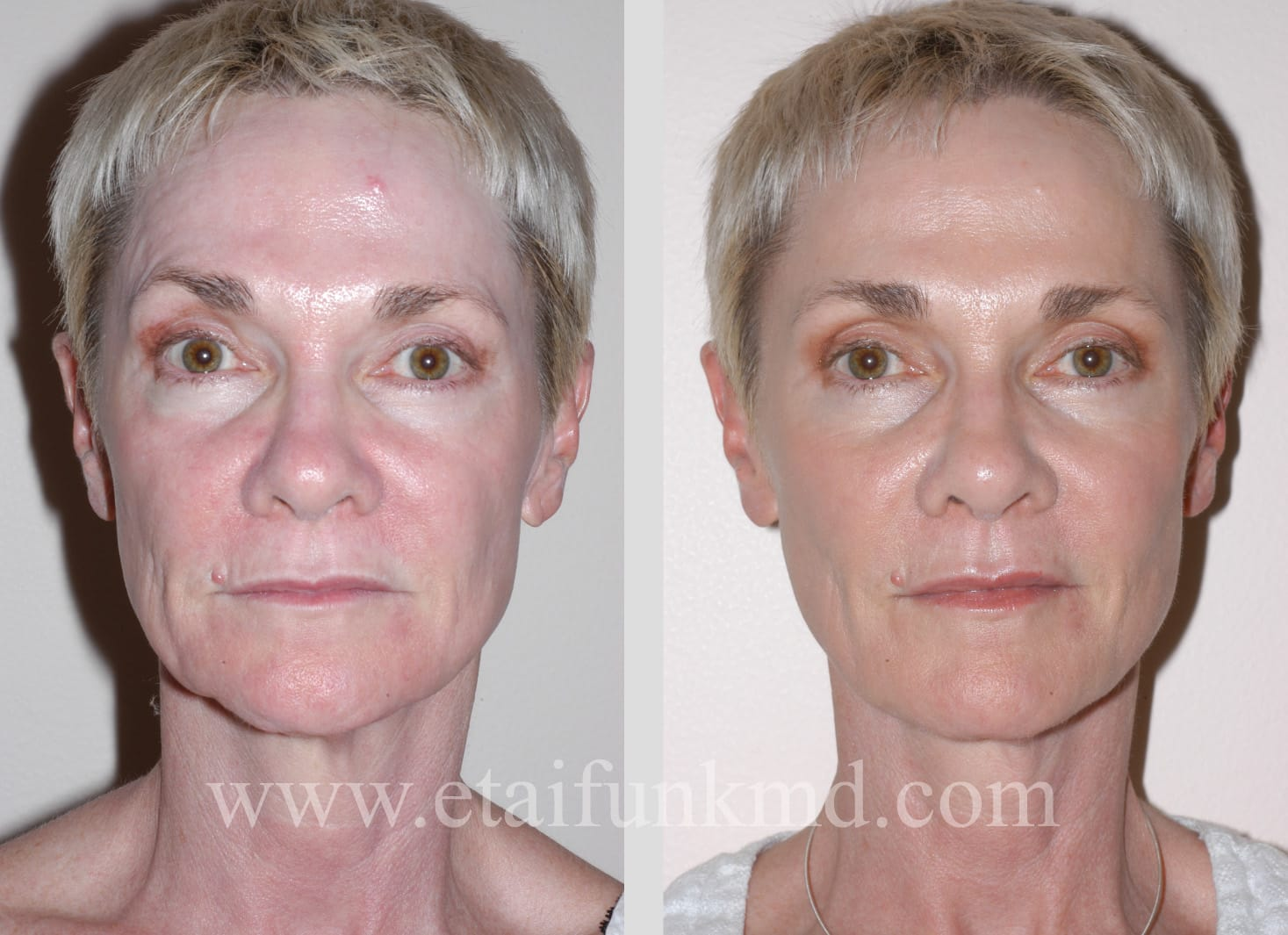 Facial Fillers Houston: Sculptra, Restylane, Perlane