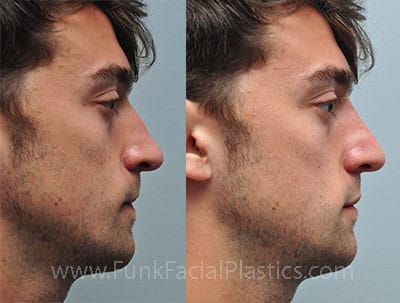 Non-Surgical Rhinoplasty & Nose Fillers Houston | Funk
