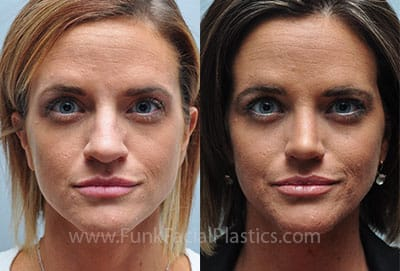 Rhinoplasty for a Bulbous Tip - Wide Nasal Tip Surgery