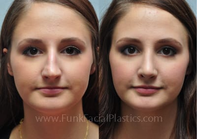Rhinoplasty Houston - Nose Job Surgeon | Funk Facial Plastic Surgery