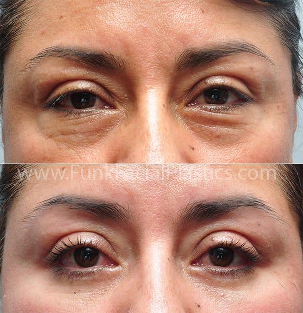 Under Eye & Eye Bag Surgery Houston - Lower Blepharoplasty