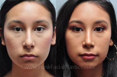 Rhinoplasty Houston Nose Job Surgeon Funk Facial Plastic Surgery