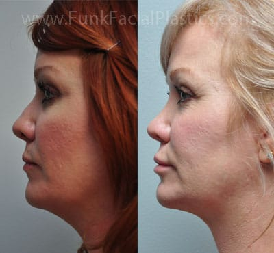 Houston Neck Liposuction - Double Chin Liposuction   Funk Facial