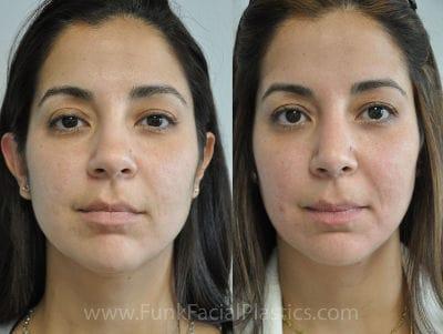 Houston facial liposuction