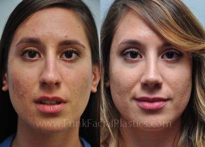 Rhinoplasty Houston - Nose Job Surgeon | Funk Facial Plastic