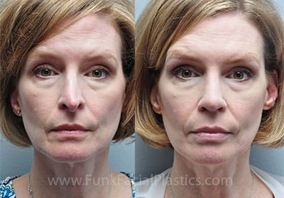 Revision Rhinoplasty Houston - Revision Septoplasty Surgery