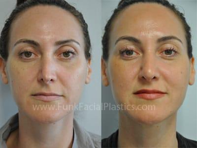 Revision Rhinoplasty Houston - Revision Septoplasty Surgery