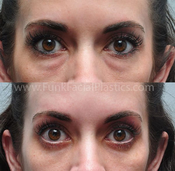 Under Eye & Eye Bag Surgery Houston - Lower Blepharoplasty