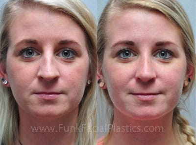 Rhinoplasty for a Crooked Nose - Broken / Asymmetrical Nose