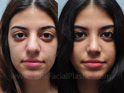 Rhinoplasty For A Bulbous Tip Wide Nasal Tip Surgery Funk Facial Plastic Surgery