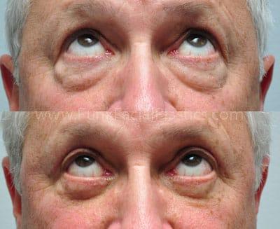 Upper Eyelid Surgery Houston - Eyelid Lift & Upper
